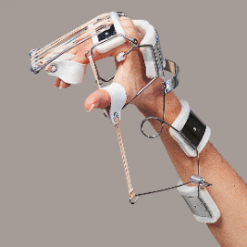 SPLINT - ferula dr. Bunnel per polso e mano (estensione polso-flessione metacarpi-estensione dita-abduzione pollice)